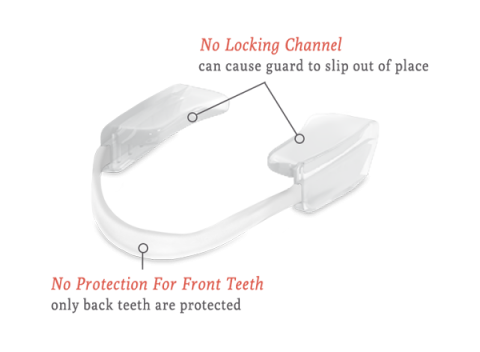 PARTIAL COVERAGE MOUTH GUARD